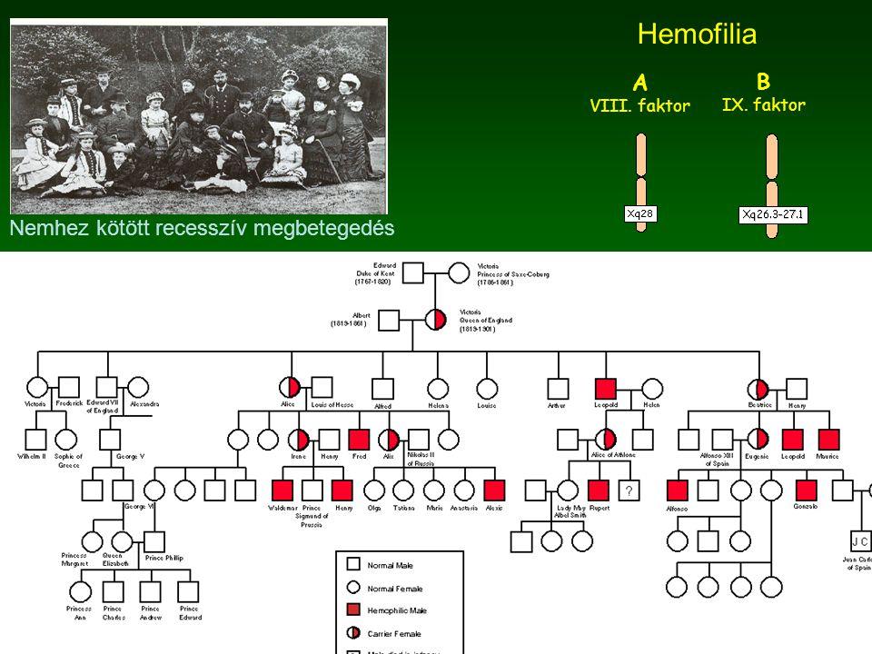 Hemofilia A B Nemhez kötött recesszív megbetegedés VIII. faktor