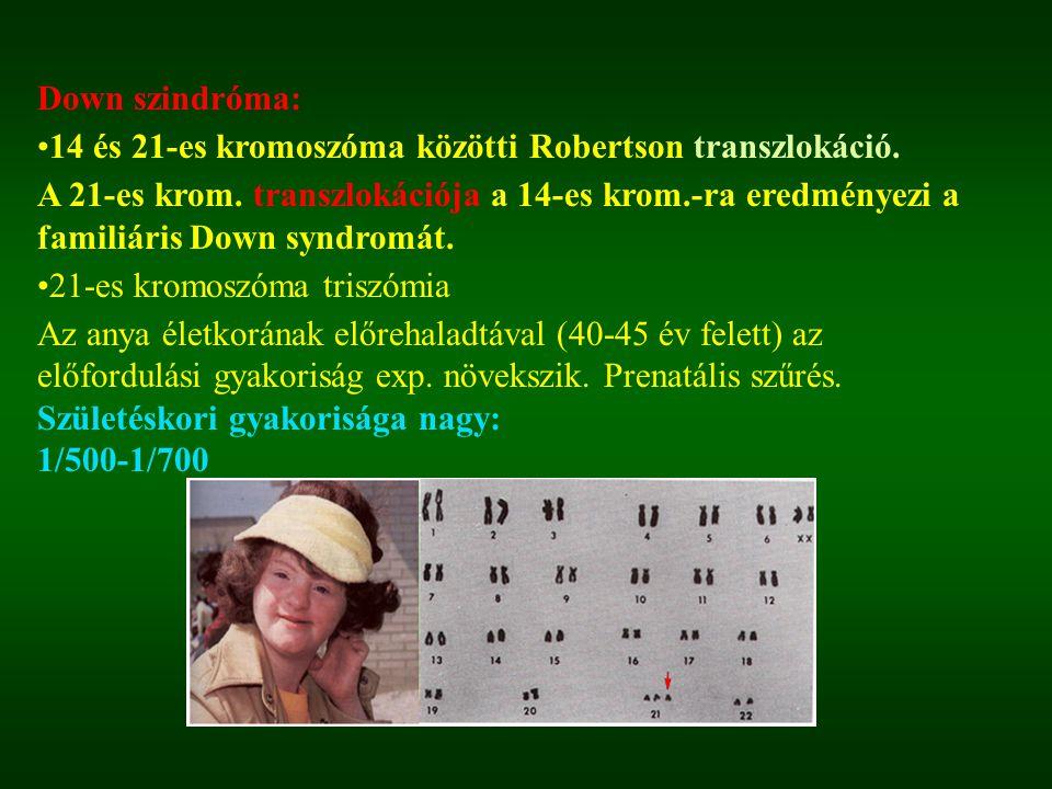 Down szindróma: 14 és 21-es kromoszóma közötti Robertson transzlokáció.