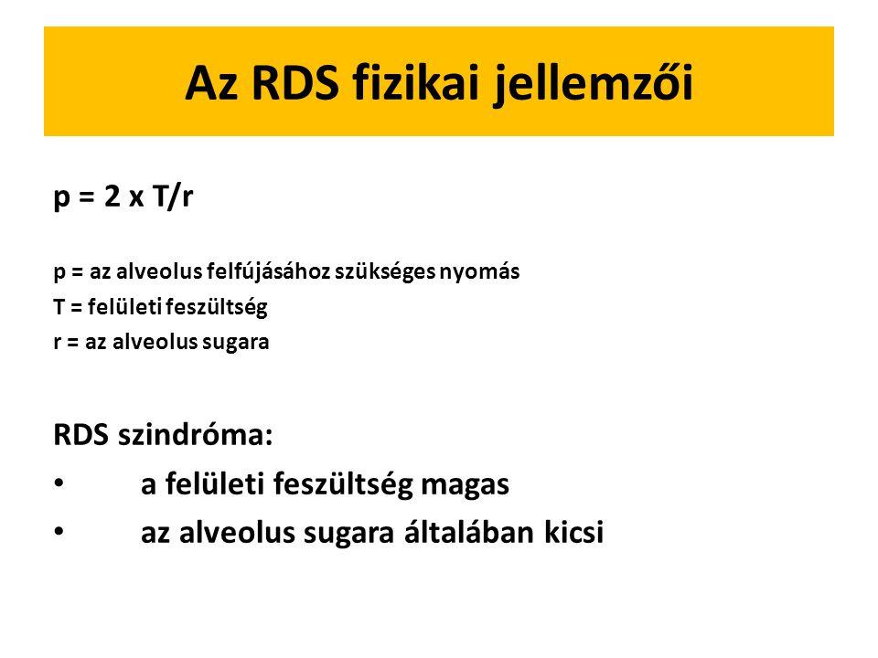 Az RDS fizikai jellemzői