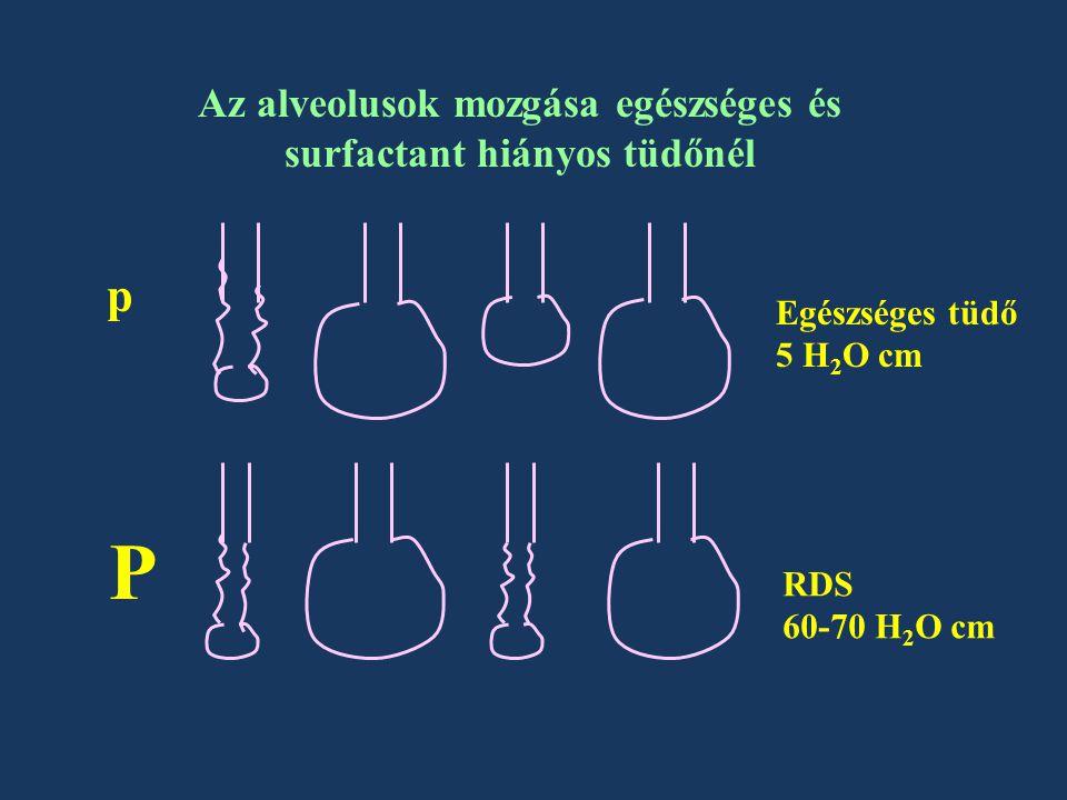 Az alveolusok mozgása egészséges és surfactant hiányos tüdőnél