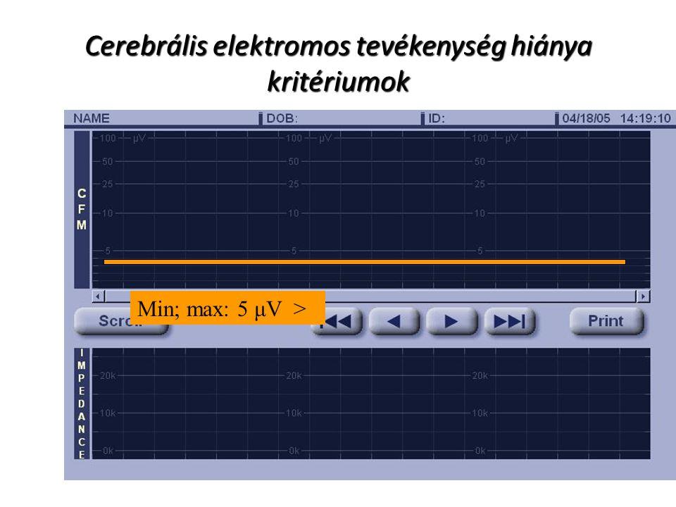 Cerebrális elektromos tevékenység hiánya kritériumok