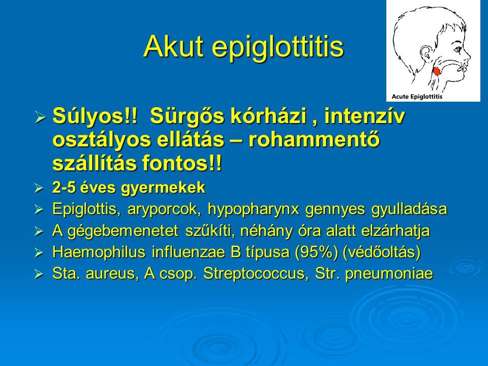 Akut epiglottitis Súlyos!! Sürgős kórházi , intenzív osztályos ellátás – rohammentő szállítás fontos!!