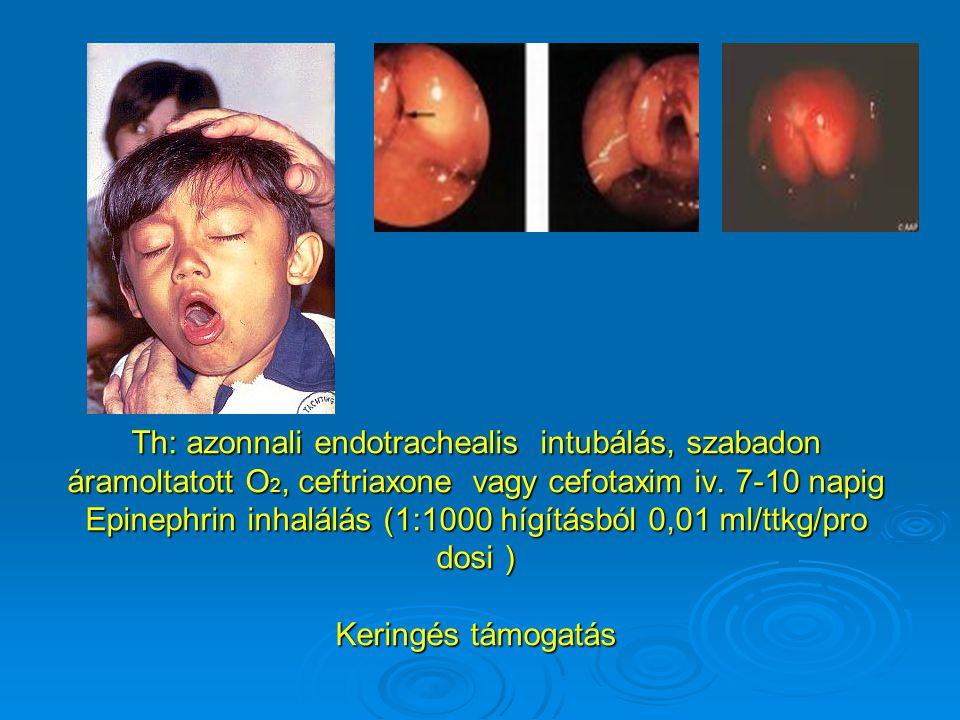 Th: azonnali endotrachealis intubálás, szabadon áramoltatott O2, ceftriaxone vagy cefotaxim iv.
