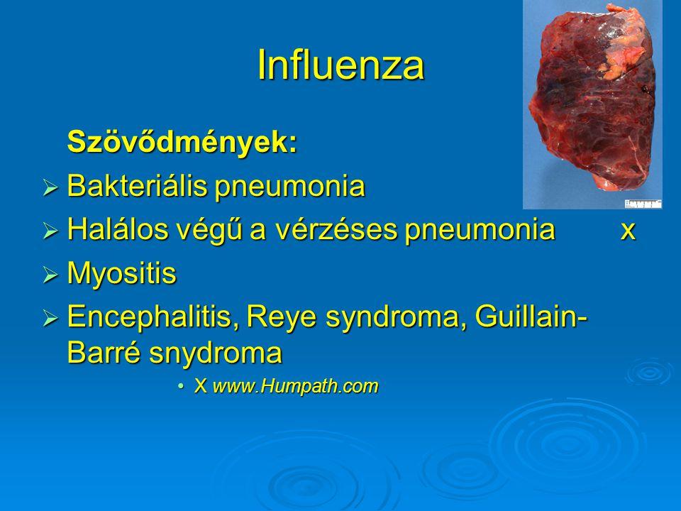 Influenza Szövődmények: Bakteriális pneumonia