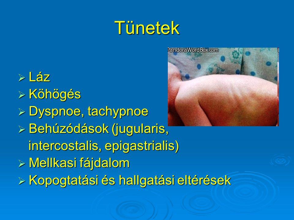 Tünetek Láz Köhögés Dyspnoe, tachypnoe Behúzódások (jugularis,