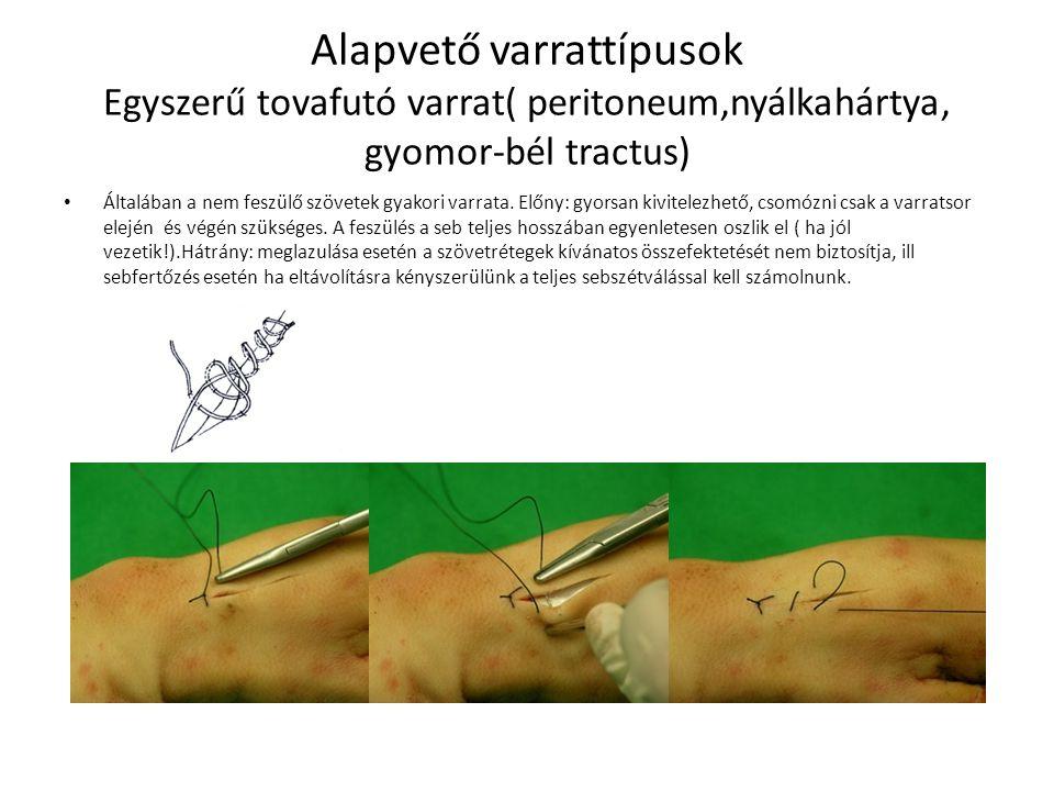 Alapvető varrattípusok Egyszerű tovafutó varrat( peritoneum,nyálkahártya, gyomor-bél tractus)