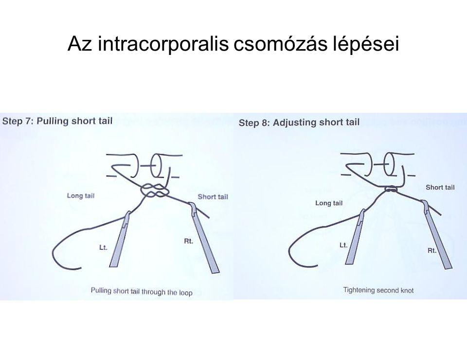 Az intracorporalis csomózás lépései