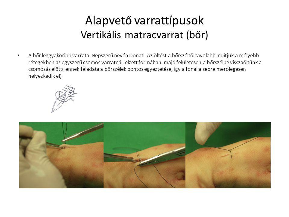 Alapvető varrattípusok Vertikális matracvarrat (bőr)