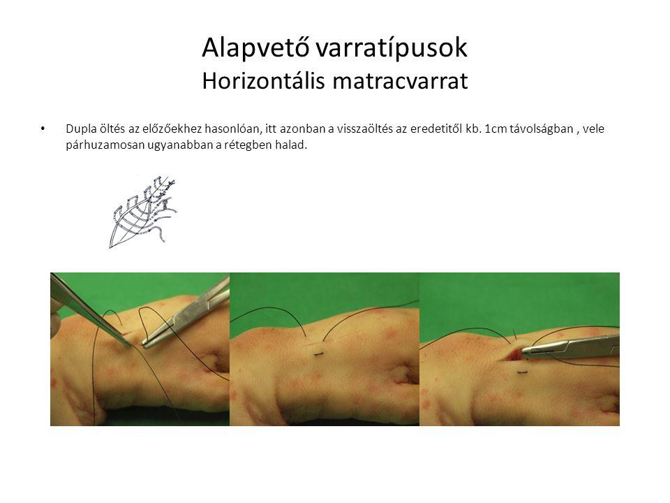 Alapvető varratípusok Horizontális matracvarrat