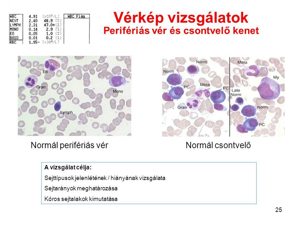 Vérkép vizsgálatok Perifériás vér és csontvelő kenet