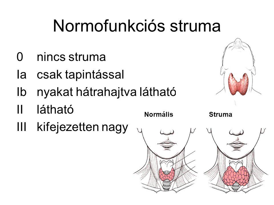 Normofunkciós struma 0 nincs struma Ia csak tapintással