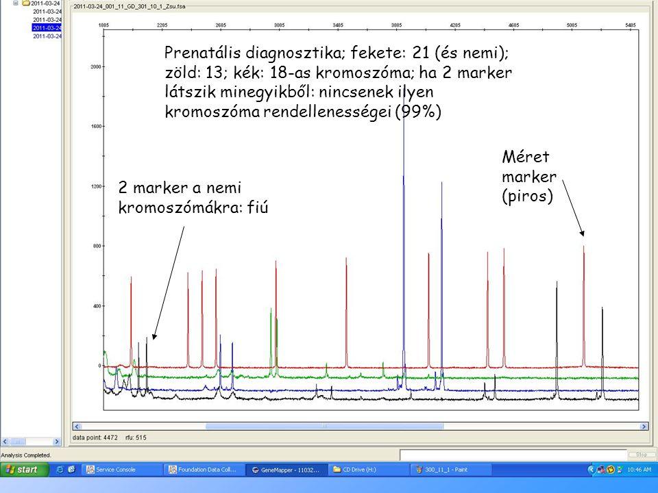 Prenatális diagnosztika; fekete: 21 (és nemi); zöld: 13; kék: 18-as kromoszóma; ha 2 marker látszik minegyikből: nincsenek ilyen kromoszóma rendellenességei (99%)