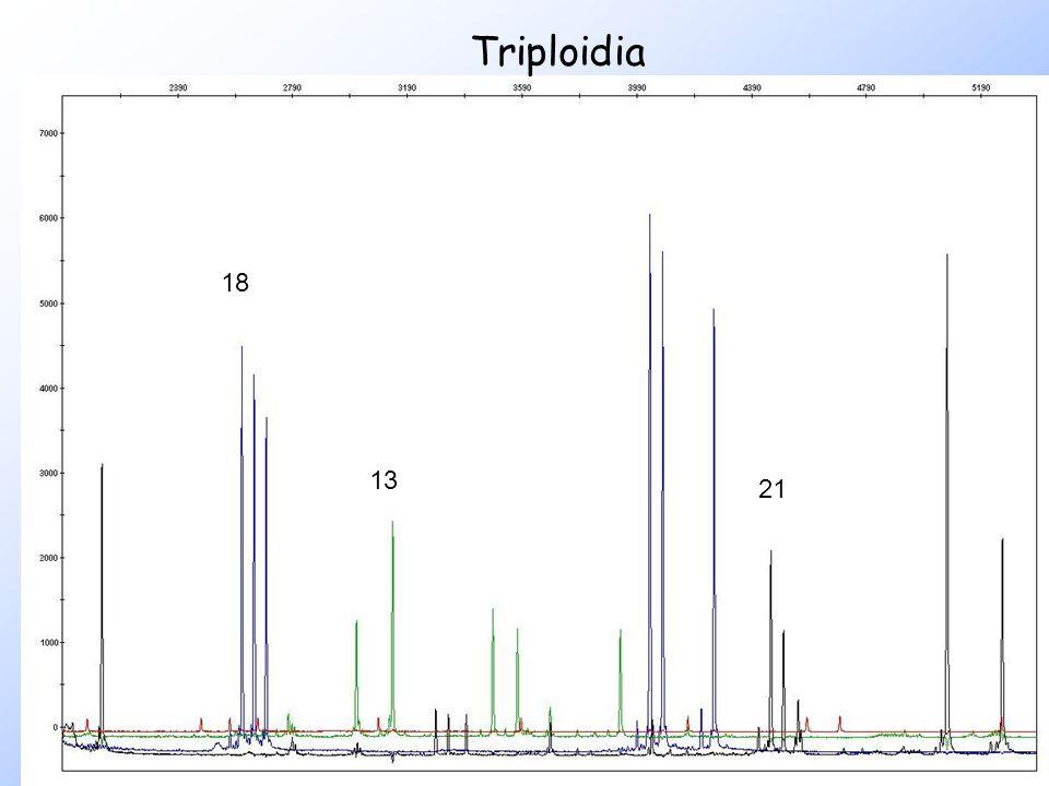 Triploidia 18 13 21
