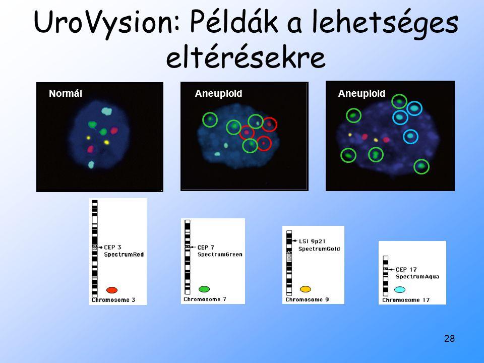 UroVysion: Példák a lehetséges eltérésekre