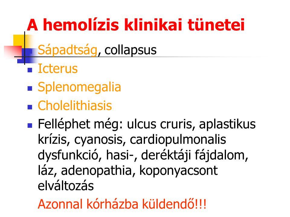 A hemolízis klinikai tünetei