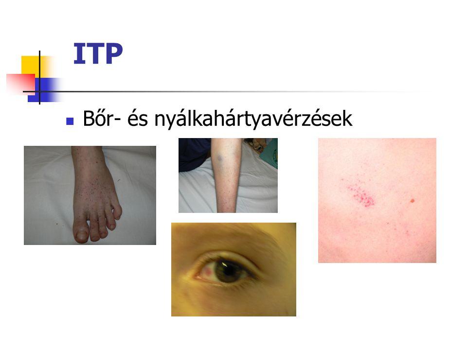 ITP Bőr- és nyálkahártyavérzések
