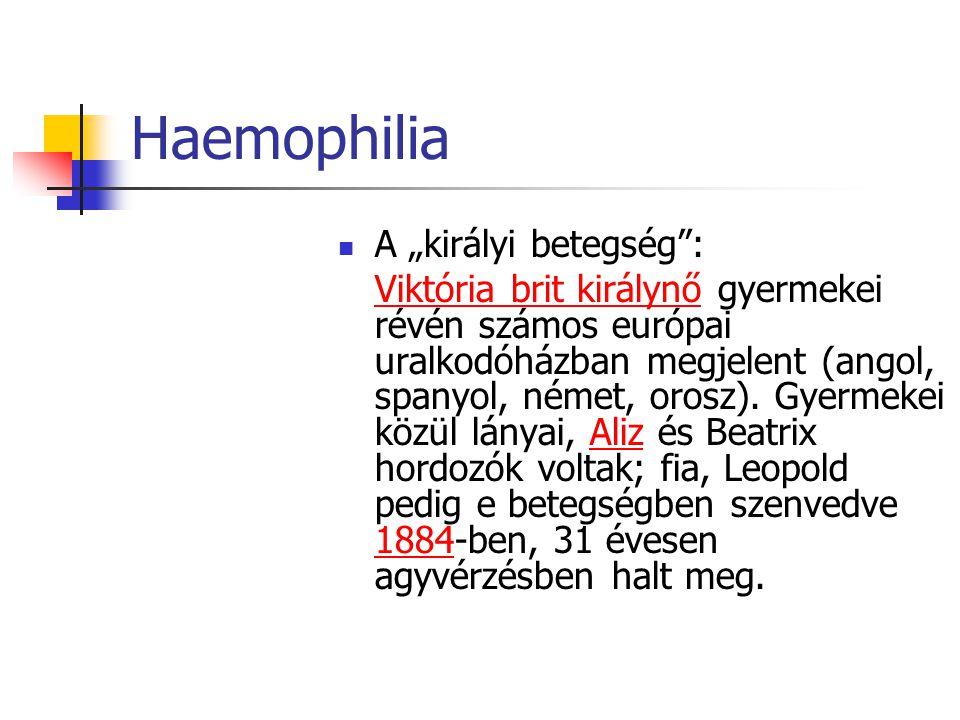 """Haemophilia A """"királyi betegség :"""