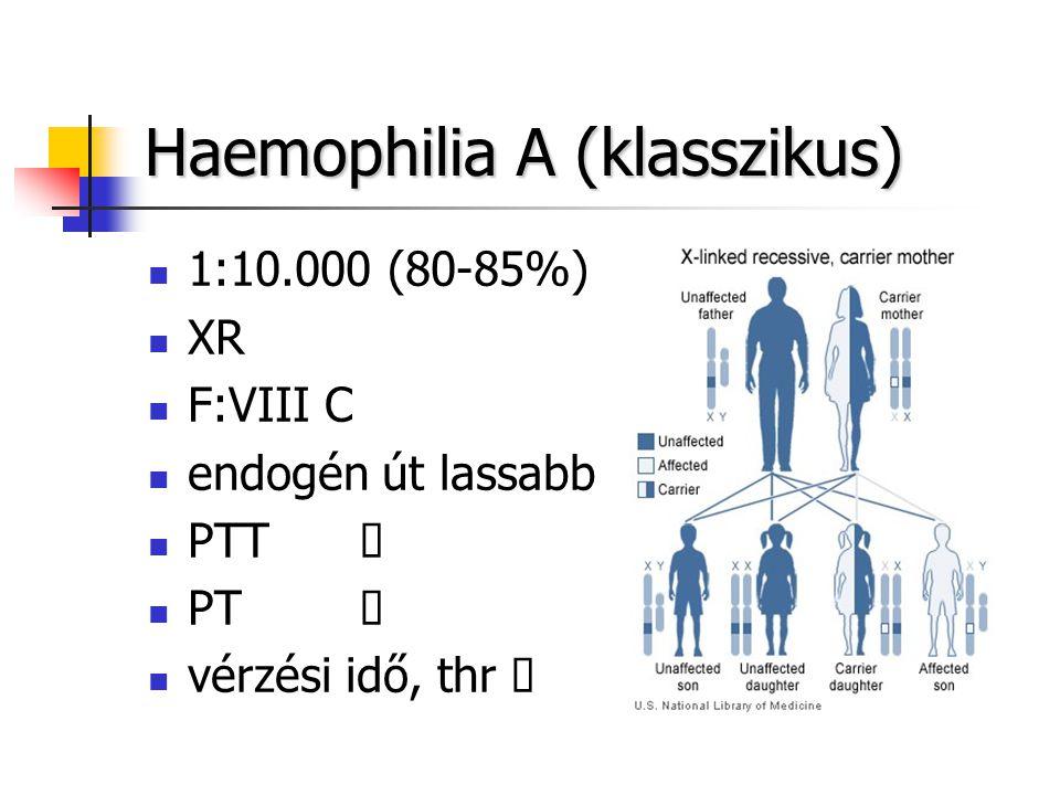 Haemophilia A (klasszikus)