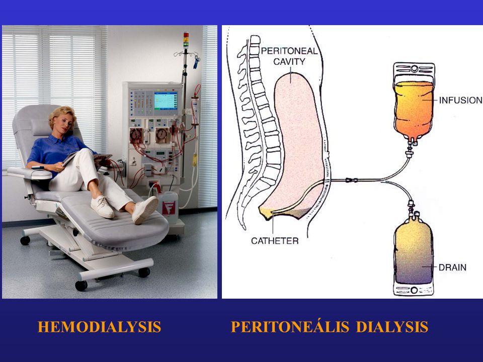 HEMODIALYSIS PERITONEÁLIS DIALYSIS