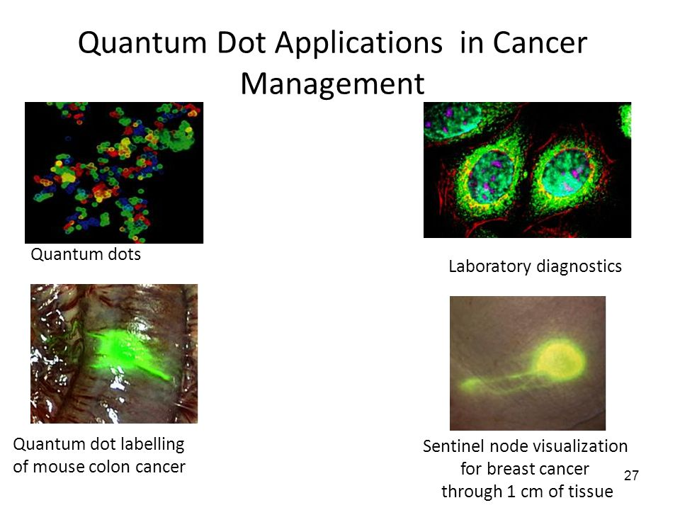 Quantum Dot Applications in Cancer Management