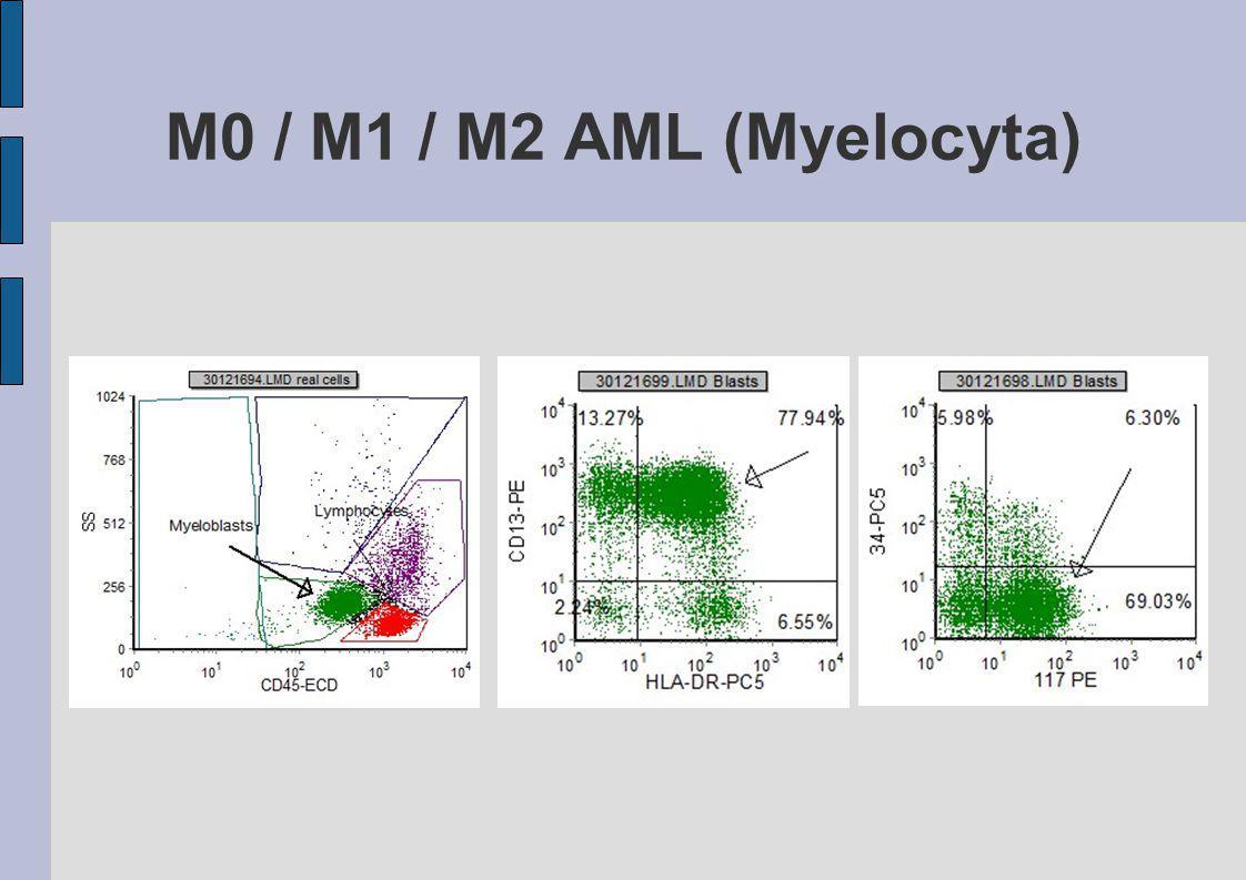 M0 / M1 / M2 AML (Myelocyta)