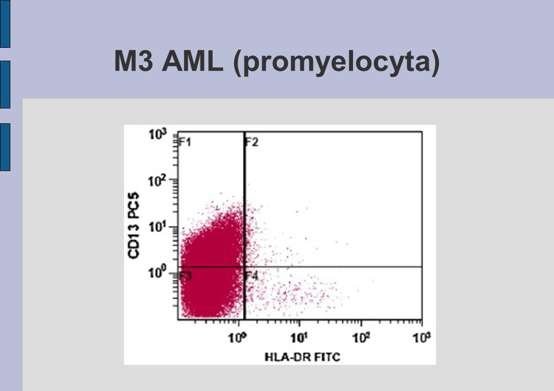 M3 AML (promyelocyta)