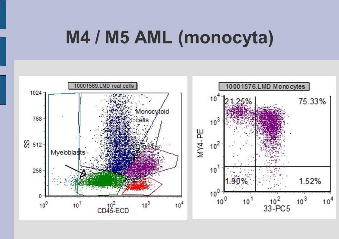 M4 / M5 AML (monocyta)