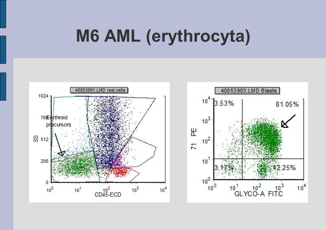 M6 AML (erythrocyta)