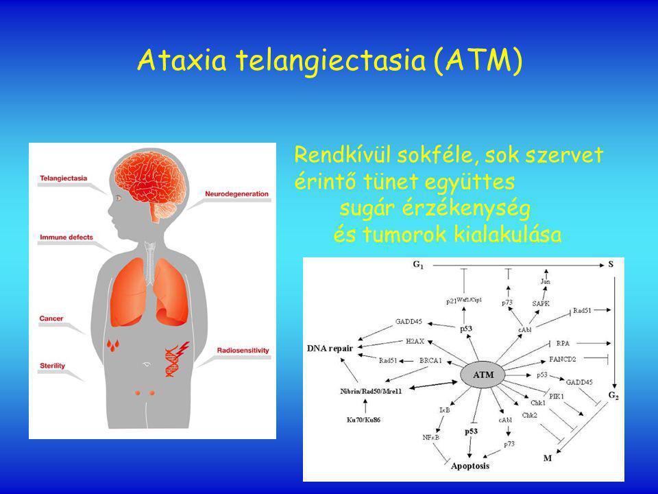 Ataxia telangiectasia (ATM)