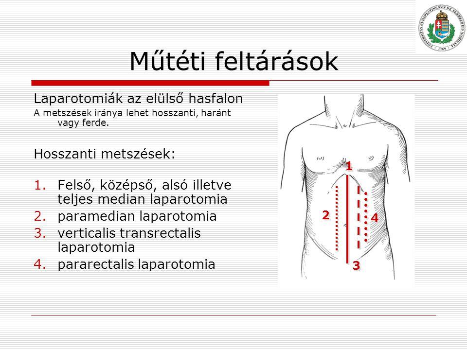 Műtéti feltárások Laparotomiák az elülső hasfalon Hosszanti metszések: