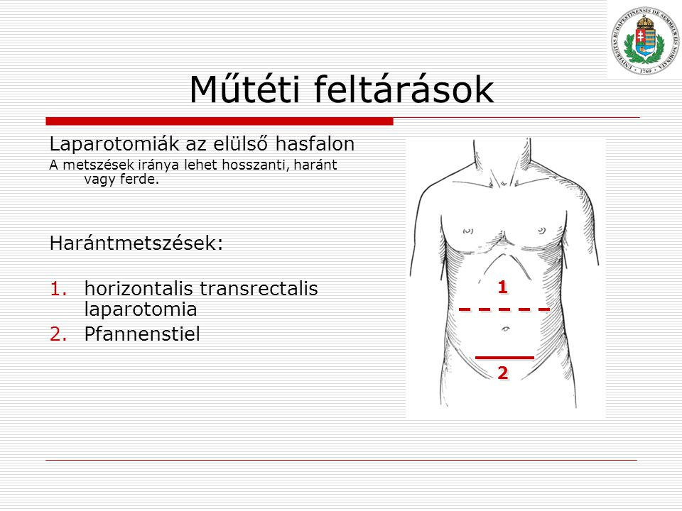 Műtéti feltárások Laparotomiák az elülső hasfalon Harántmetszések:
