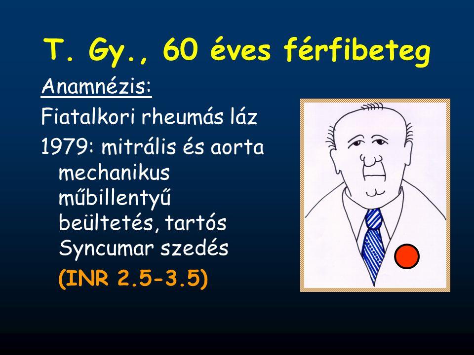 T. Gy., 60 éves férfibeteg Anamnézis: Fiatalkori rheumás láz