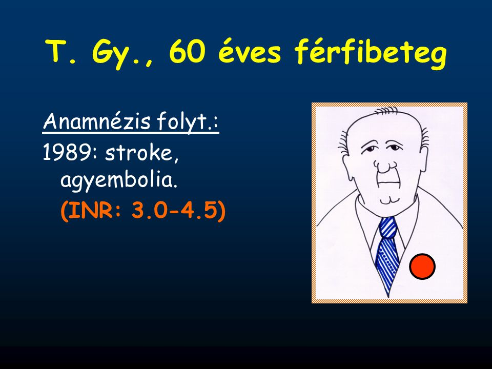 T. Gy., 60 éves férfibeteg Anamnézis folyt.: 1989: stroke, agyembolia.