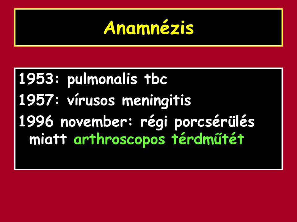 Anamnézis 1953: pulmonalis tbc 1957: vírusos meningitis