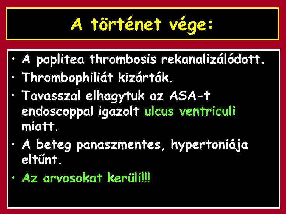 A történet vége: A poplitea thrombosis rekanalizálódott.