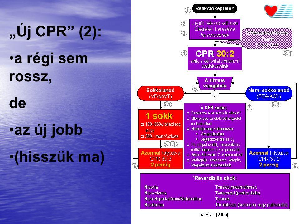 """""""Új CPR (2): a régi sem rossz, de az új jobb (hisszük ma)"""