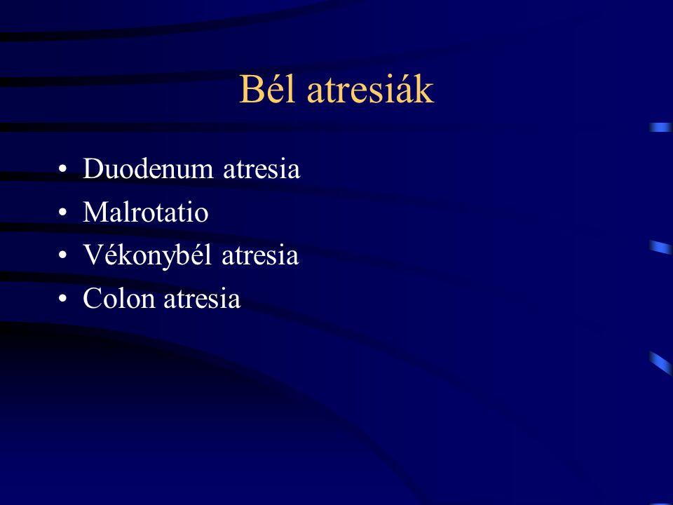 Bél atresiák Duodenum atresia Malrotatio Vékonybél atresia