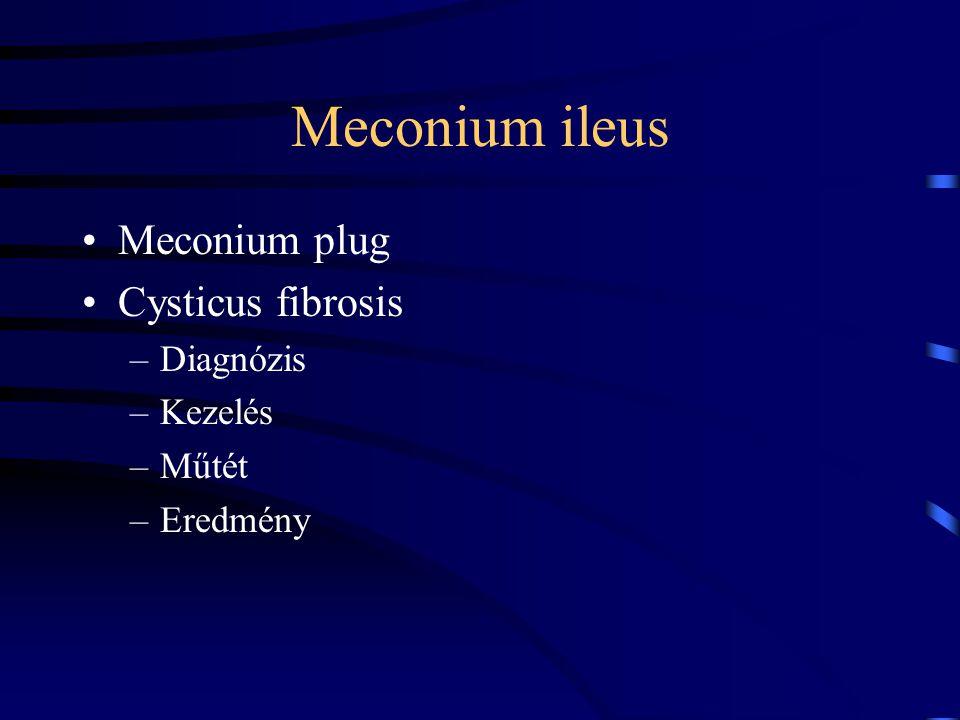 Meconium ileus Meconium plug Cysticus fibrosis Diagnózis Kezelés Műtét