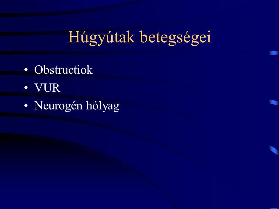 Húgyútak betegségei Obstructiok VUR Neurogén hólyag