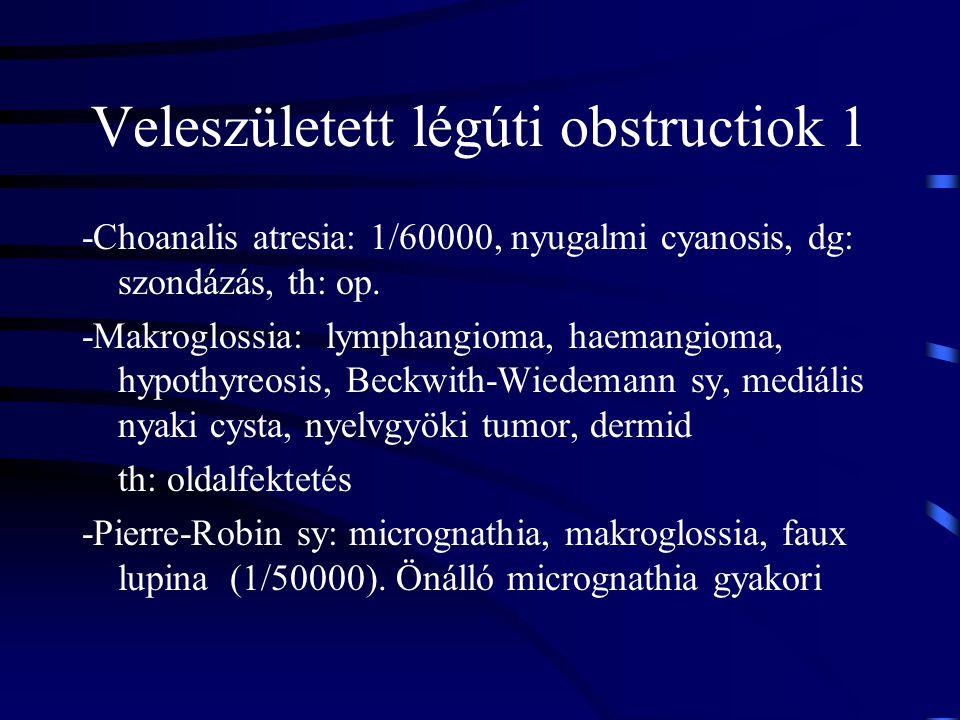 Veleszületett légúti obstructiok 1