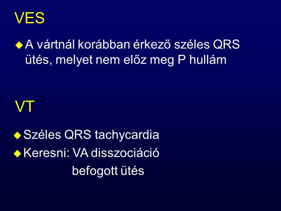 VES A vártnál korábban érkező széles QRS ütés, melyet nem előz meg P hullám. VT. Széles QRS tachycardia.