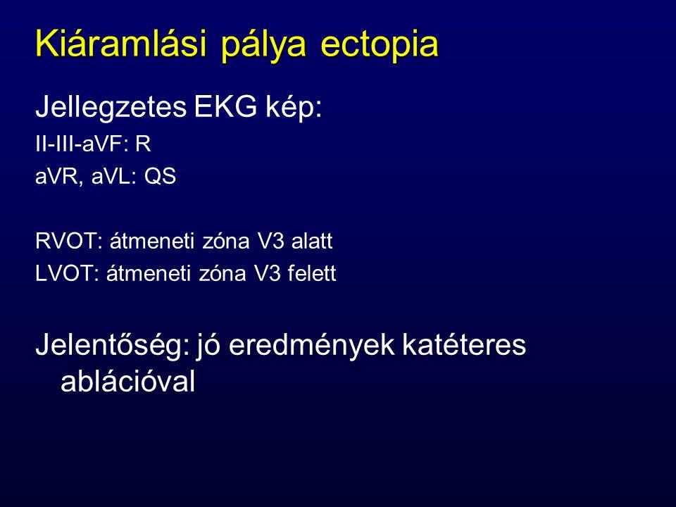 Kiáramlási pálya ectopia