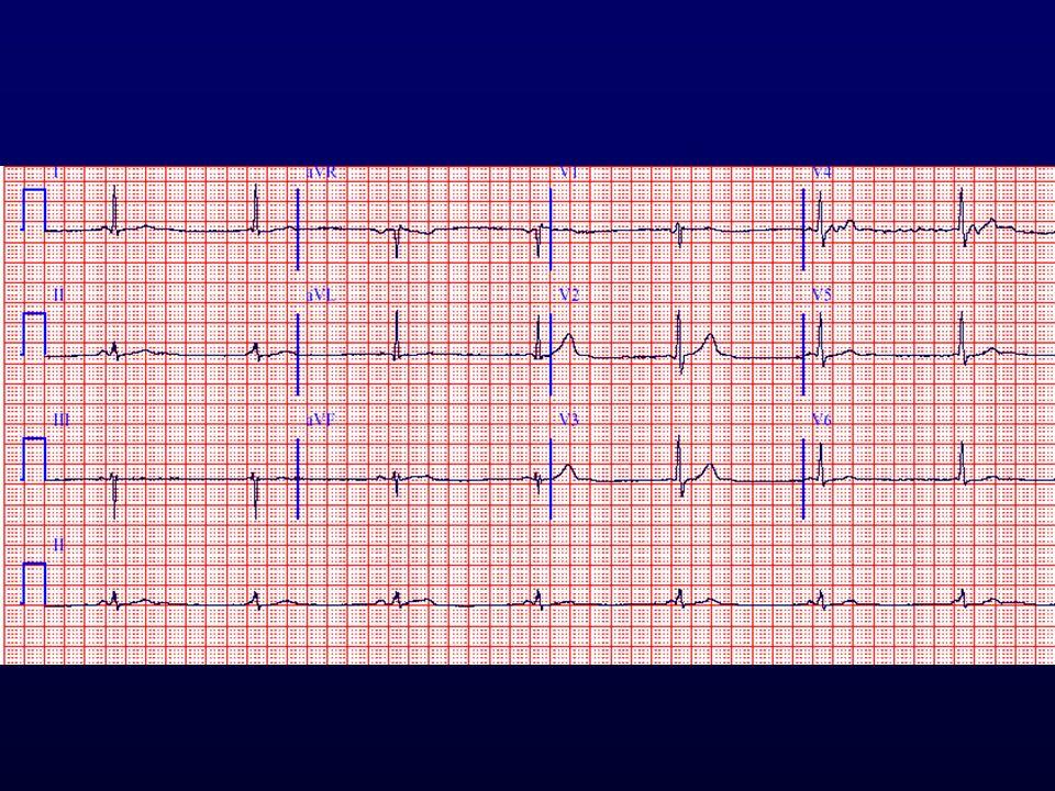 Sinus bradycardia, junkcionalis ritmus