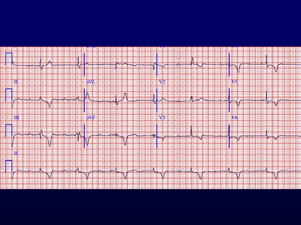 Pitvari tachycardia+ AV blokk+JTSZB