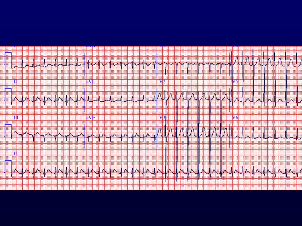 Keskeny QRS tachycardia, vsz pitvari