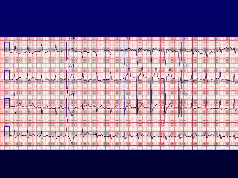 2:1-es pitvari tachycardia, VES