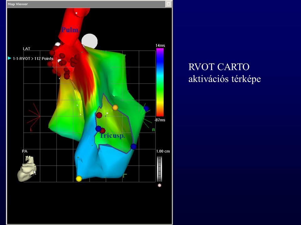 Pulm. RVOT CARTO aktivációs térképe Tricusp.