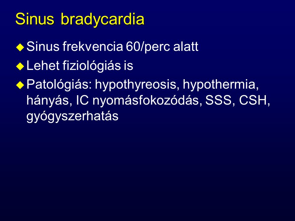 Sinus bradycardia Sinus frekvencia 60/perc alatt Lehet fiziológiás is