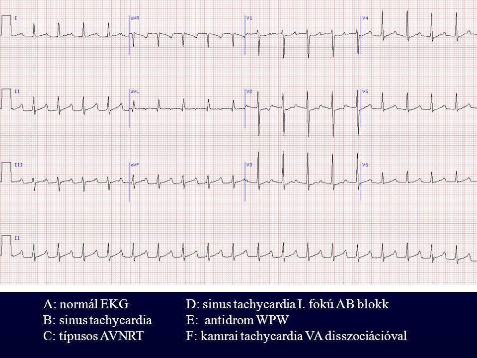 A: normál EKG D: sinus tachycardia I. fokú AB blokk