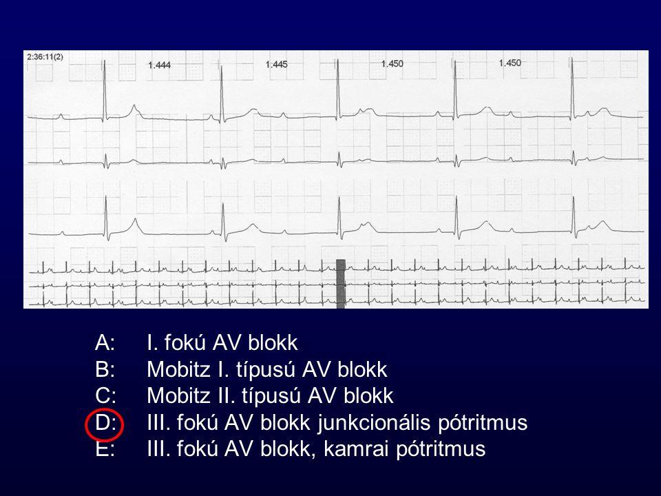 A: I. fokú AV blokk B: Mobitz I. típusú AV blokk. C: Mobitz II. típusú AV blokk. D: III. fokú AV blokk junkcionális pótritmus.